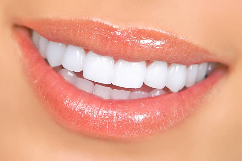 Teeth Whitening Diamond Creek